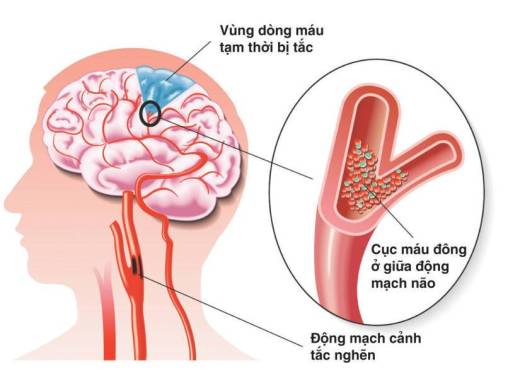 Các yếu tố đông máu gây ra đột quỵ